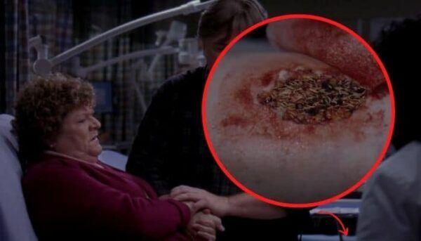 Grey's Anatomy jambe vers
